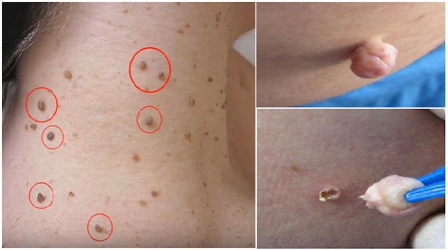 Jangan Panik Jika Tubuhmu Dipenuhi Tumor Fibroid/Kulit Berlebih, Begini Cara Mudah Mengatasinya