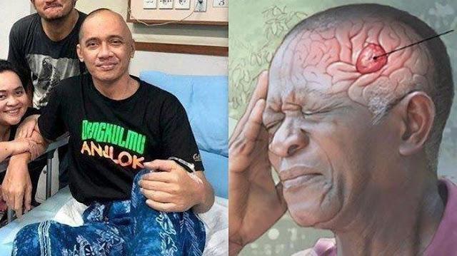 6 Gejala Kanker Otak Seperti yang Dialami Almarhum Agung Hercules