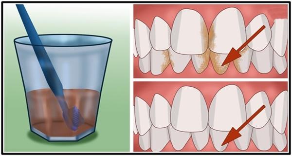 Aneka Tips Cara Membersihkan Karang Gigi Dan Plak Secara Alami Dan Memutihkan Gigi Kuning Dengan Cepat Dan Mudah