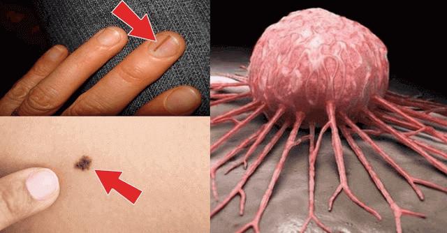 Perhatikan dan Waspadai, Inilah 20 Tanda Awal Kanker Mulai Berkembang di Tubuhmu!