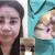 Pengen Mancung Malah Kena Apes. Sisi Gelap Operasi Pl*stik Thailand yang Bikin Bergidik