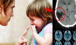 Sekali Memarahi Jutaan Sel Otak Rusak, Ini yang Akan Terjadi Pada Otak Anak Bila Sering Dimarahi